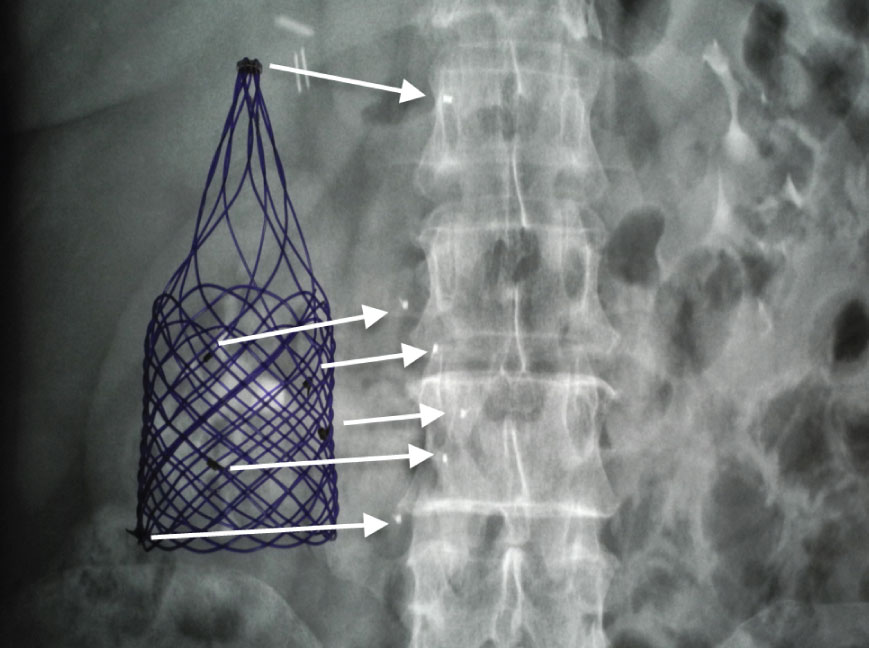 X-Ray image of filter in human